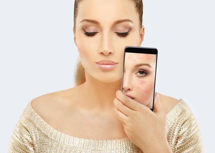 vanity soin peeling acné