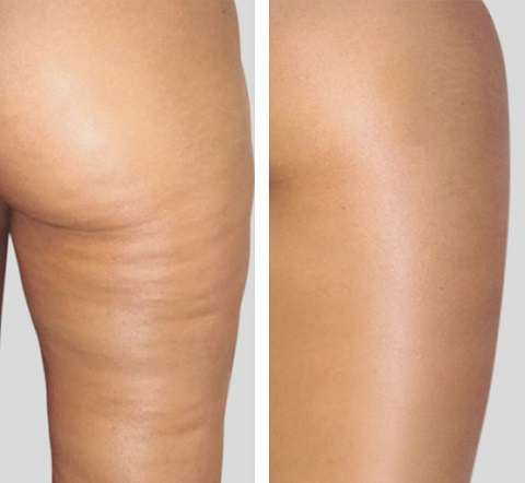 cellulite peau d'orange